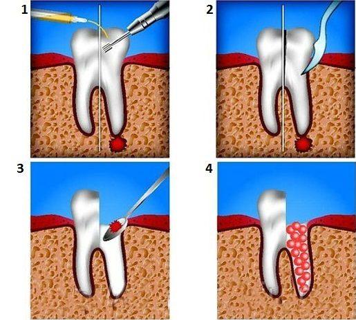 Удаление кисты, зубного корня и части зуба