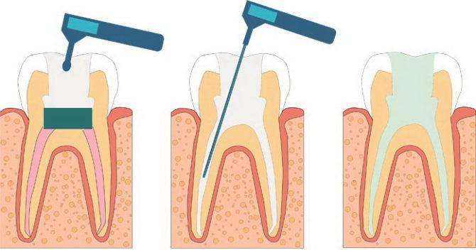 Удаление временной пломбы и пломбирование каналов с полостью