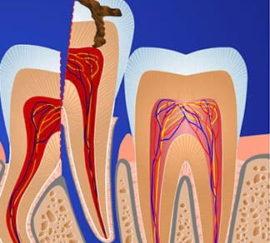 Удаление зуба по частям