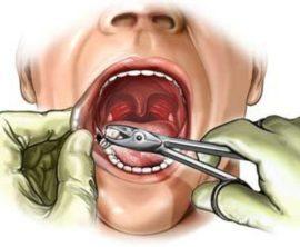 Удаление зуба стоматологом-хирургом