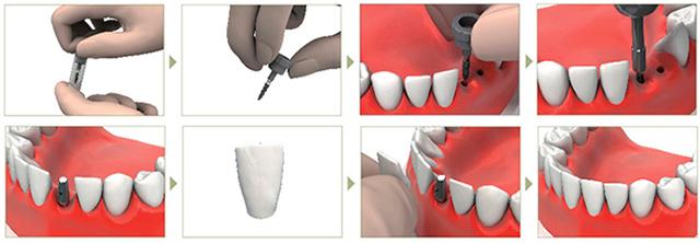 Установка импланта с немедленной нагрузкой
