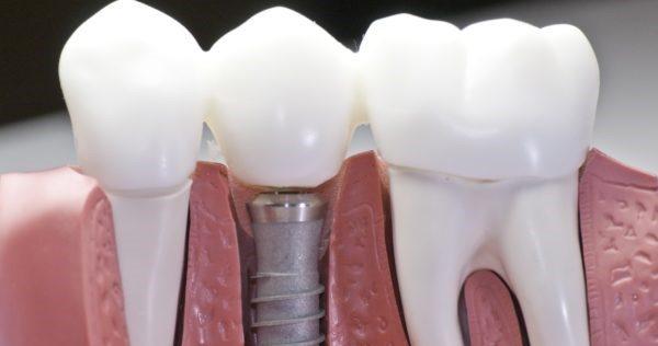 Установка внешней части имплантанта