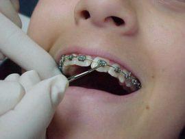 Установка зубных скоб