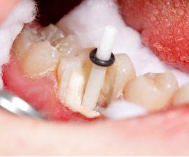 Установленный в корень зуба штифт