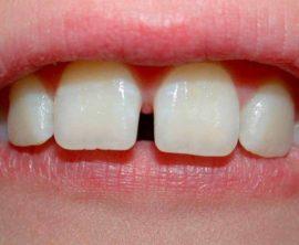 Увеличенные промежутки между молочными зубами