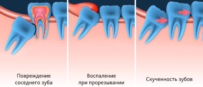 Варианты неправильного роста зуба мудрости