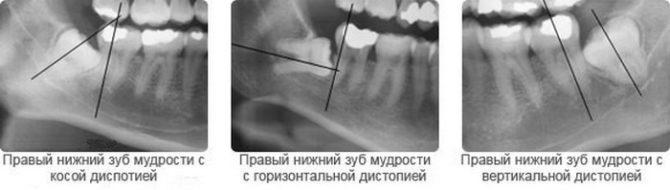 Виды дистопии зубов мудрости