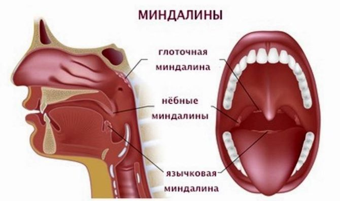 Виды и расположение миндалин