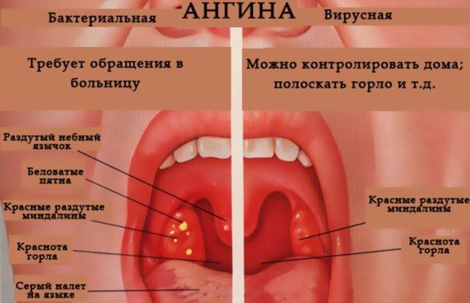 Виды и способы лечения ангины