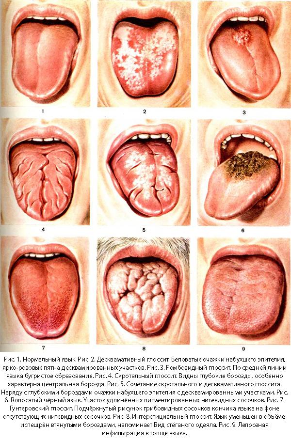 Виды и внешние проявления глоссита