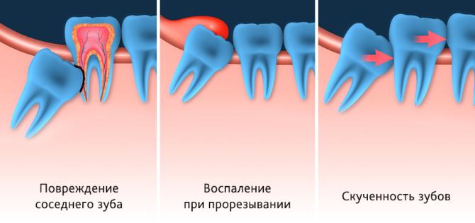 Виды неправильного прорезывания зуба мудрости