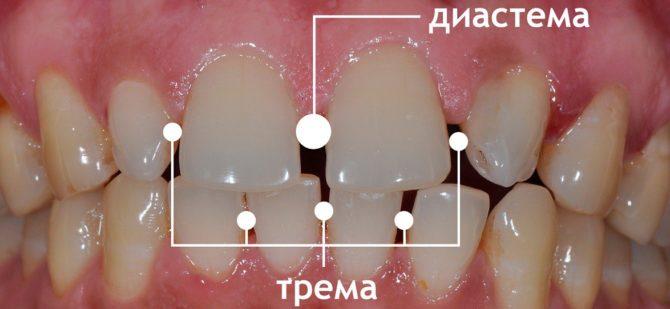 Виды щелей между зубами