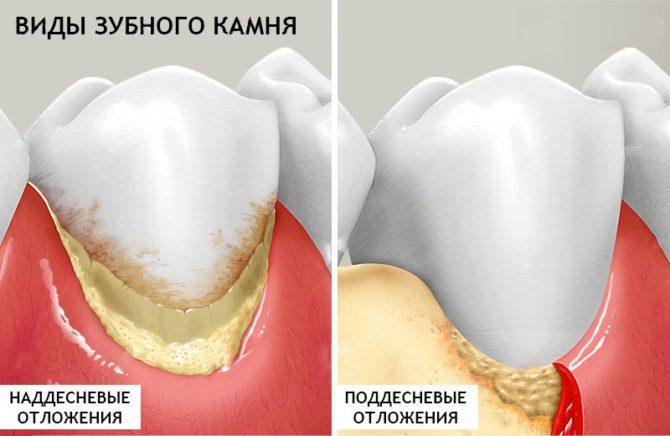 Удаление зубного камня в домашних условиях народными средствами