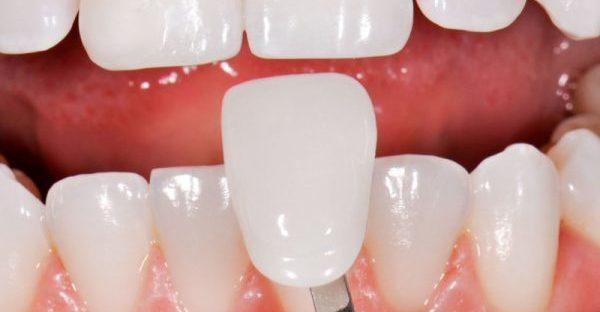 Винир на передний зуб