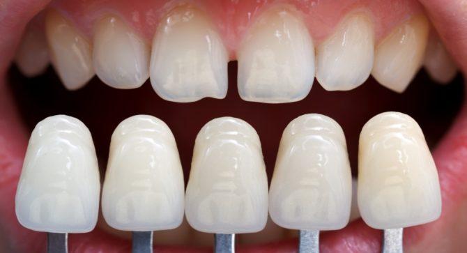 Виниры для реставрации зубов