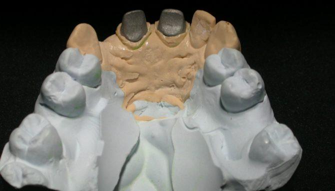 Вкладки в гипсовой модели, отлитой по зубному оттиску