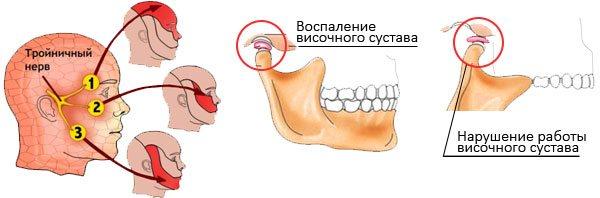 Влияние невралгии тройничного нерва на височно-нижнечелюстной сустав