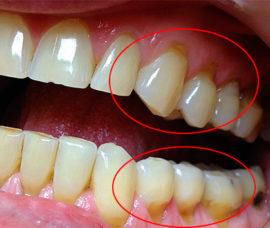 Внешние признаки клиновидного дефекта зубов