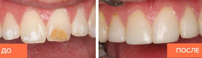 Внешний вид зубного ряда до и после установки композитных виниров