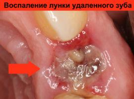 Воспаление лунки удаленного зуба