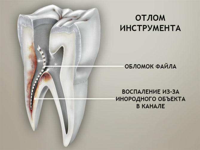 Воспаление мягких тканей зуба из-за обломка файла