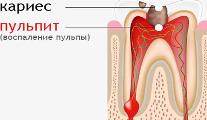 Воспаление пульпы зуба