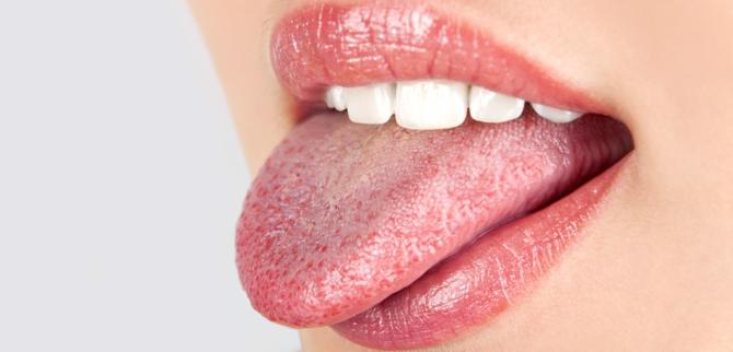 Воспаленный язык
