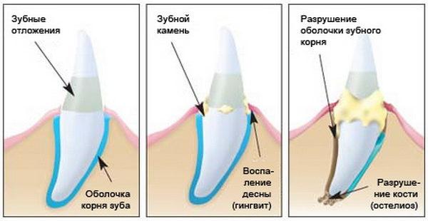 Воздействие зубного камня на десны и зубы