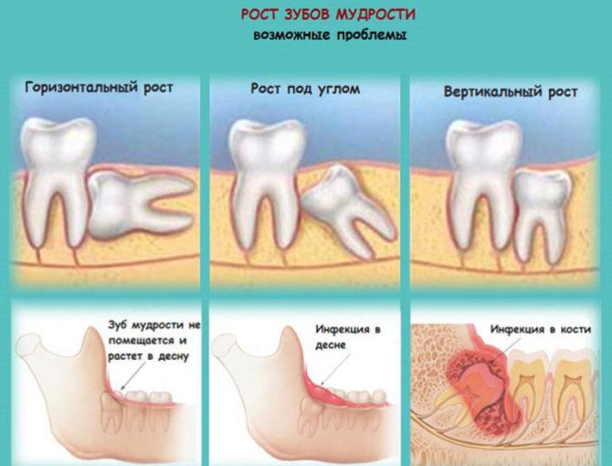 Возможные проблемы во время роста зуба мудрости