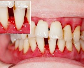 Вред диабета для зубов