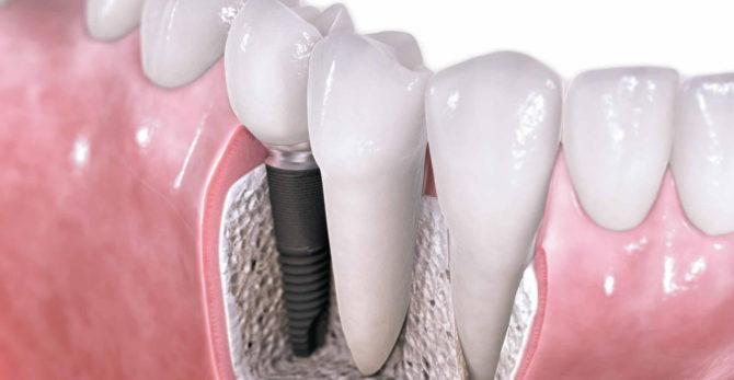 Вставной зуб