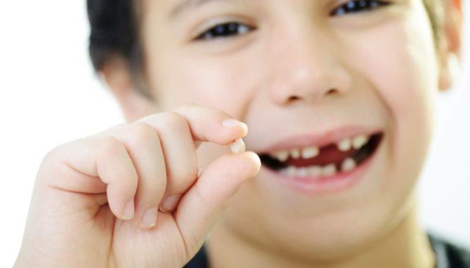Как вырвать ребенку молочный зуб дома