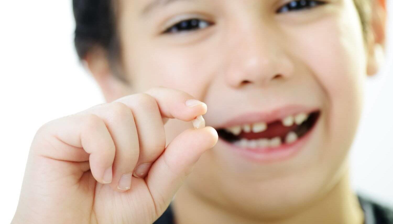 Картинки по запросу шатание зубов