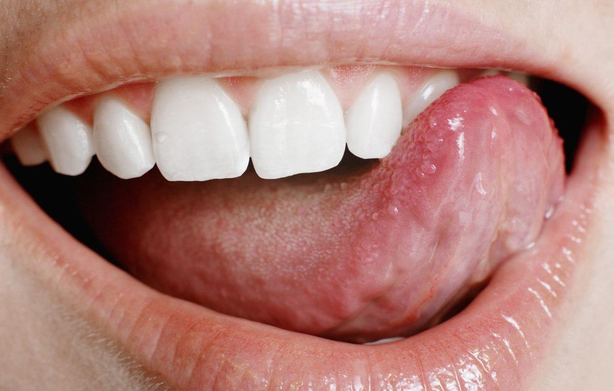 Прыщ на языке: причины и что делать, если вскочил белый прыщик