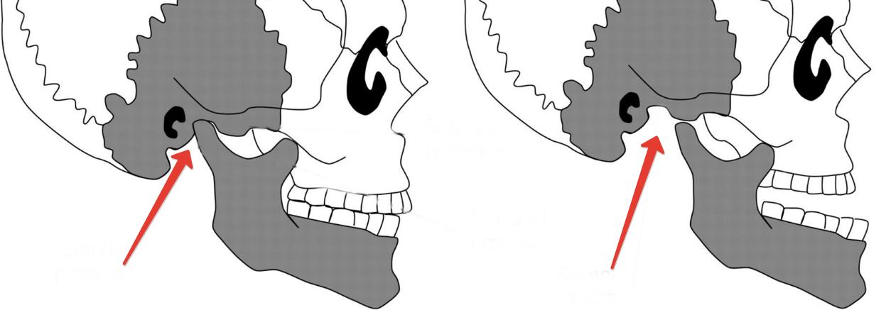 Болит челюсть возле уха все возможные причины