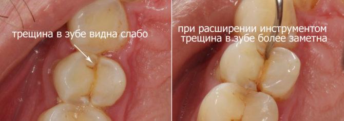 Выявление трещины на зубе в ходе стоматологического обследования