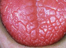 Язык при ксеростомии