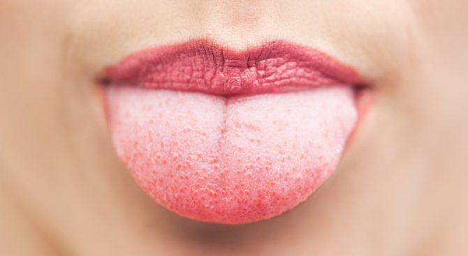 Язык с красными пупырышками