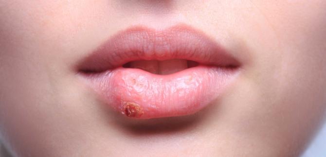 Заболевание губ