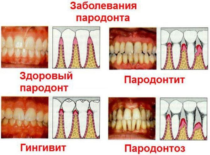 Как понять металлический привкус во рту