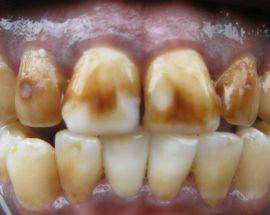 Запущенный флюороз зубов