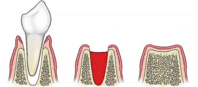 Заростание лунки после удаления зуба
