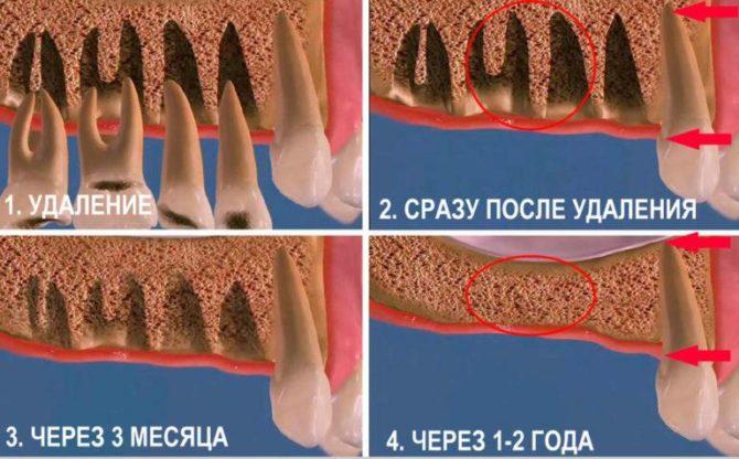 Заживление лунки после удаления зуба