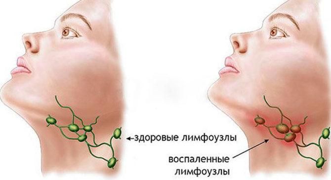 Здоровые и воспаленные лимфоузлы