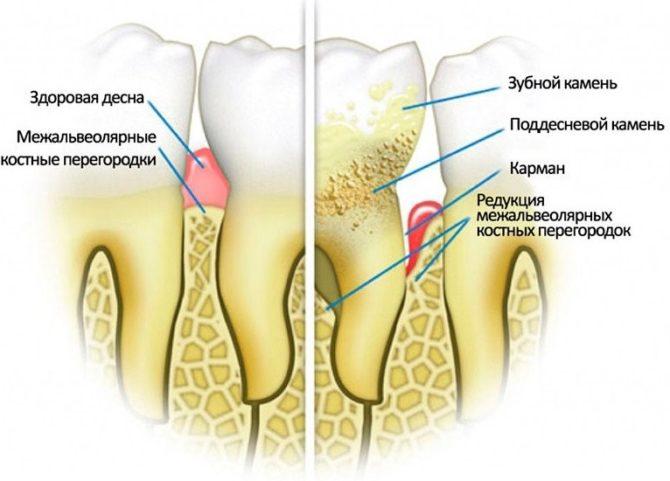 Здоровые зубы и пародонтоз