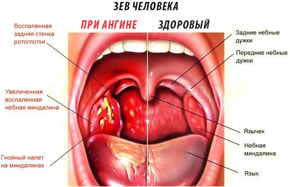 Зев в нормального состоянии и при тонзиллите