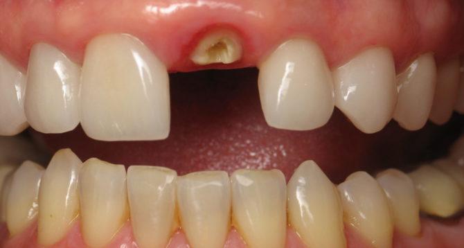 Зуб с полностью разрушенной коронкой
