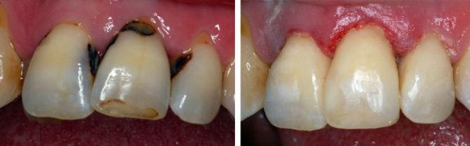 Зуб с пришеечным кариесом до и после лечения