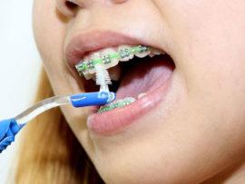 Зубной ершик для брекетов