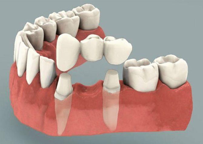 Зубной мост на три зуба